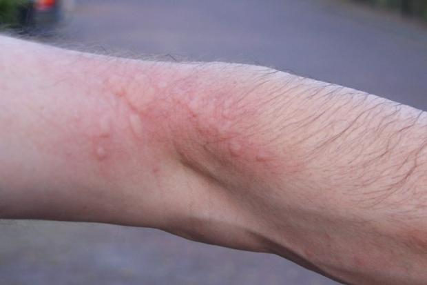 A rash caused by oak processionary moth hairs (with permission of the Oak Processionary Moth Project, Forestry Commission)